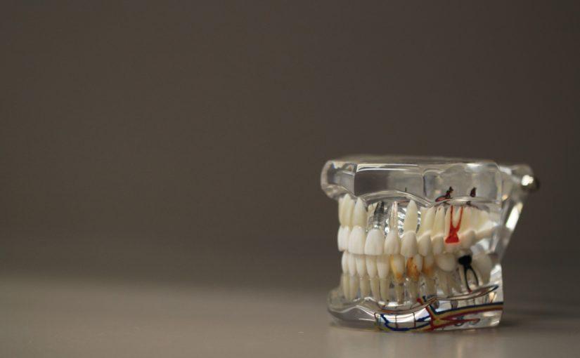 Zły sposób odżywiania się to większe braki w ustach a dodatkowo ich utratę